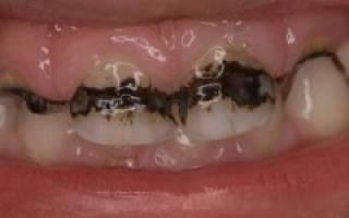 Что делать если чернеет зуб