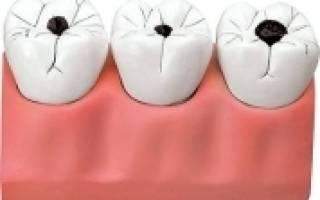 Почему возникает кариес на зубах