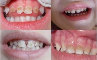 У ребенка налет на зубах как убрать