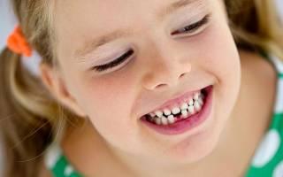 Молочные зубы есть ли корни