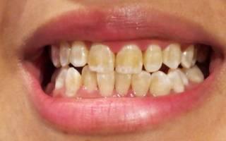 Желтеют зубы что делать