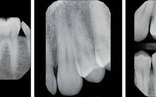 Как правильно делать рентген зубов