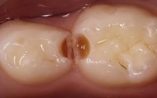 Могут ли болеть молочные зубы у детей
