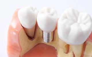 Производители зубных имплантов