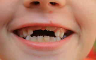 Постоянные зубы у детей