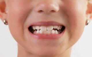 Сроки прорезывания зубов у детей таблица