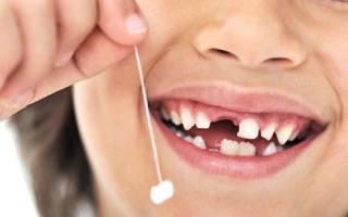 Как быстро вырвать зуб