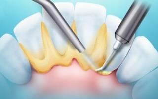 Налет на внутренней стороне зубов