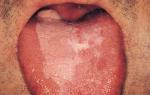 Лейкоплакия на языке