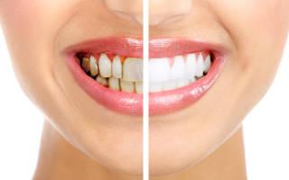 Паста для удаления зубного камня
