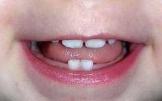 Сколько у ребенка молочных зубов всего