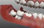 Воспаление десны у зуба мудрости