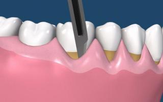 Пластика зубов до и после