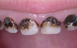 Зубы чернеют у корней