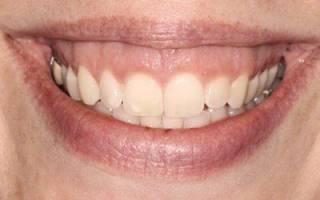 Маленькие зубы у взрослого что делать