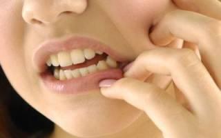 Как убрать камни на зубах