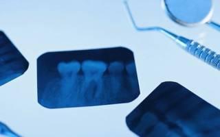 Как делают снимок зуба
