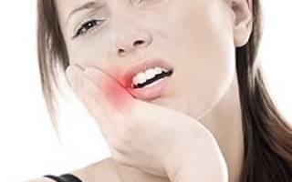 Почему болит щека