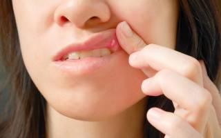 Чем полоскать рот при стоматите у детей