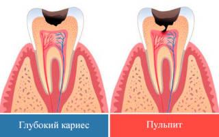 Пульпит зуба что это такое как лечить