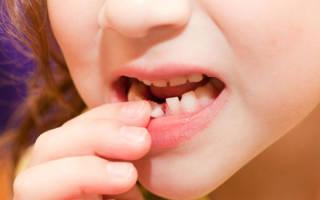Не выпадают молочные зубы