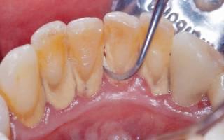 Что нельзя делать после чистки зубов
