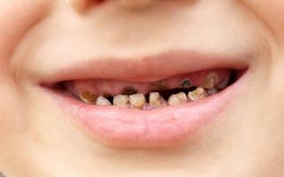 У ребенка гниют молочные зубы что делать