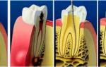 Воспаление корня зуба
