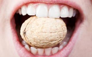 Качаются зубы как укрепить
