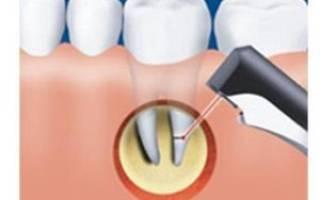 Отек после резекции верхушки корня зуба