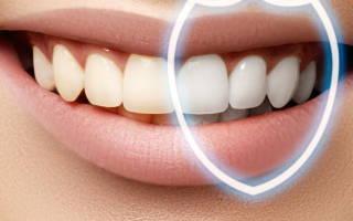 Сильный налет на зубах