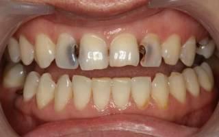 Раствор соды для полоскания зуба