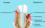 Болит десна возле зуба при надавливании