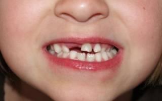 Для чего нужны молочные зубы