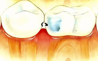 Как стоматологи лечат кариес